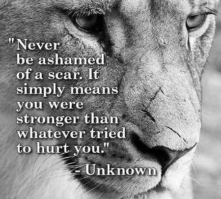 never-be-ashamed-of-scars